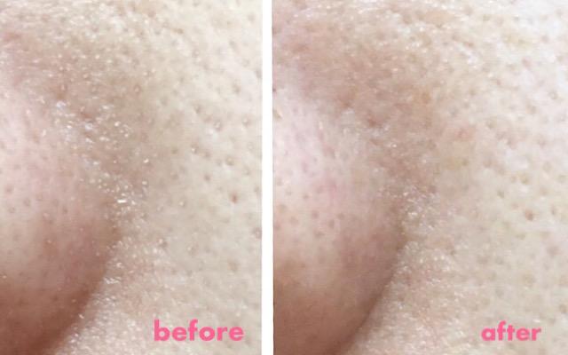 酵素洗顔を使うことによって毛穴・角栓がどれくらい取れるかの比較画像