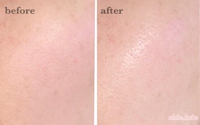 オルビスユードットを使う前と使った後の肌の比較画像
