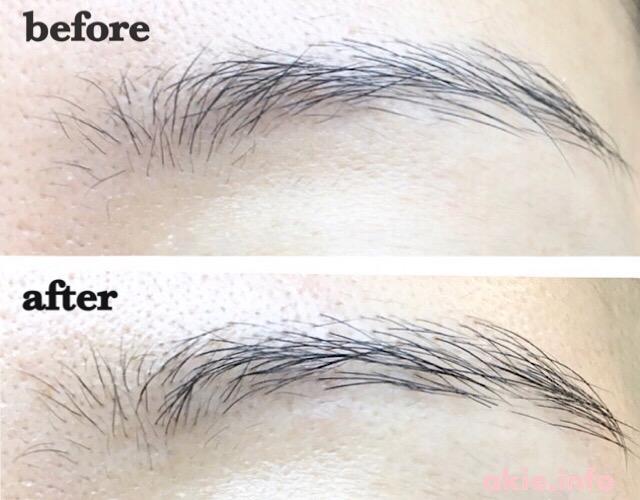 すっぴんだと眉毛がない筆者が眉毛美容液を使った使用前後の比較画像