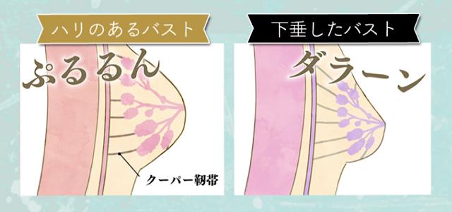 卒乳後に胸がしわしわになってしまう原因のひとつであるクーパー靭帯の伸びを説明する画像
