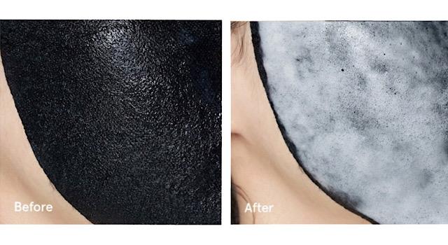 ドクタージャルトの炭酸パックを顔につけて泡立つ比較画像