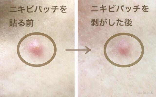 ニキビパッチを貼る前と貼った翌日の、肌状態を比較した画像