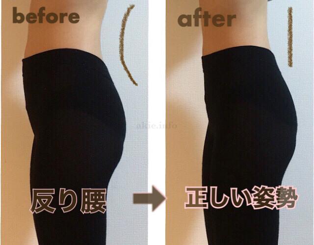 マジカルシェリーは履いて、反り腰が改善できたビフォーアフターの画像