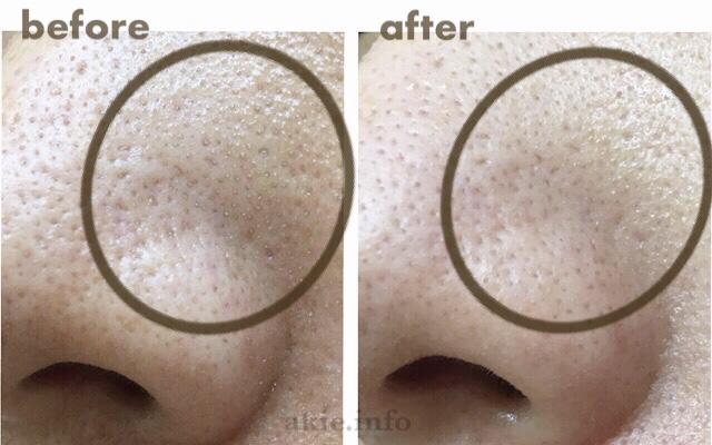 ネオちゅらびはだを使う前と使った後のいちご鼻を比較した画像